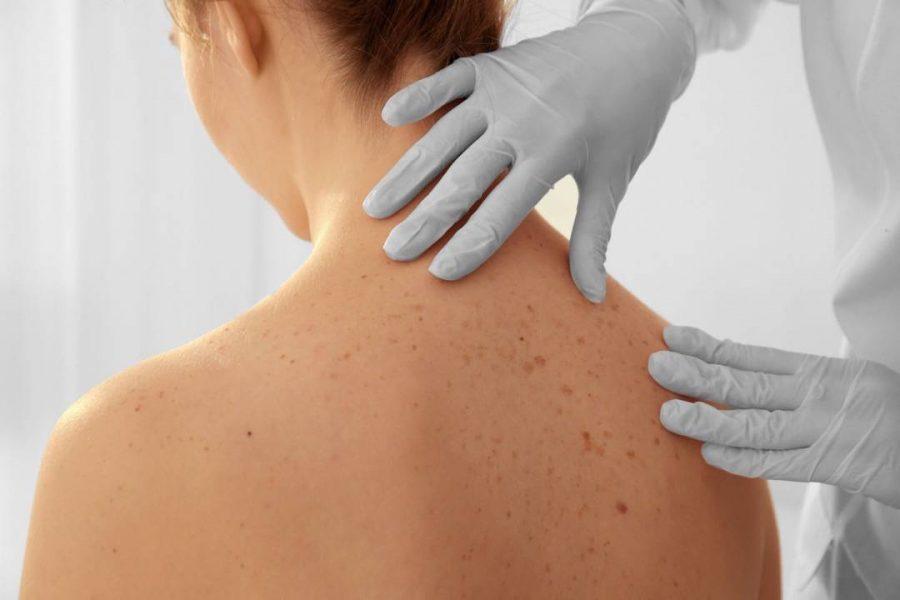 Tumore alla pelle: i migliori ospedali italiani a cui rivolgersi